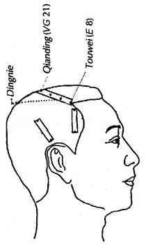 Acupuntura do couro cabeludo
